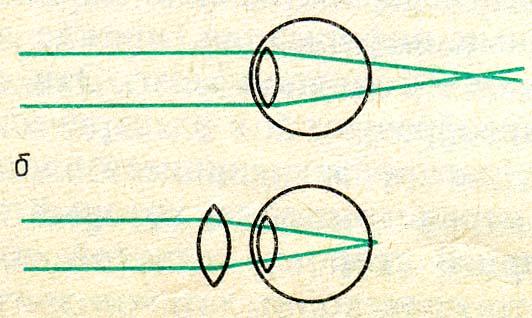 Коррекция зрения спб институт федорова отзывы
